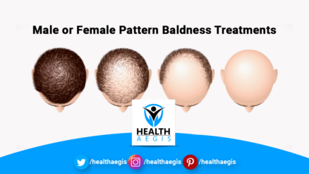 Male-or-Female-Pattern-Baldness-Treatments