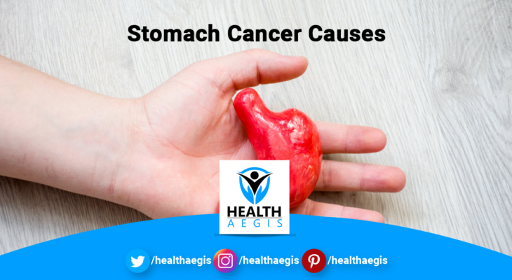 Stomach-Cancer-Causes